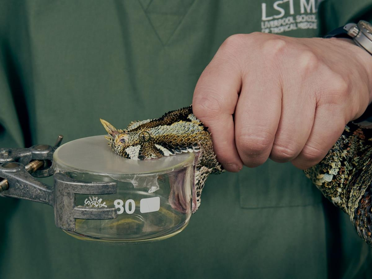 Improving treatment for snakebite patients